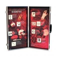 Diabeto pasėkmių demonstracinė medžiaga