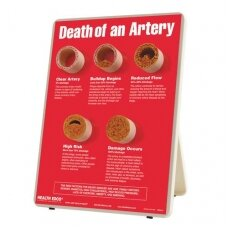 """Informacinis stovas """"Arterijos mirtis"""""""