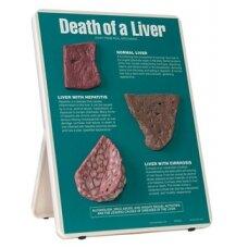 Kepenų mirtis, molberto formos medžiaga