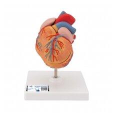 Klasikinis žmogaus širdies modelis su kairiojo skilvelio hipertrofija (LVH), 2 dalys