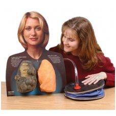 Lou-Wheeze rūkoriaus ir sveiko žmogaus plaučių modelis su pompa